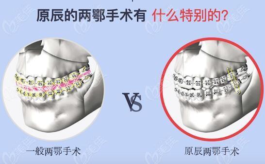 韩国原辰做双颚手术与普通双颚手术对比