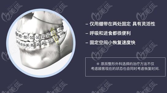 韩国原辰做双颚手术之自主捆绑术的优势
