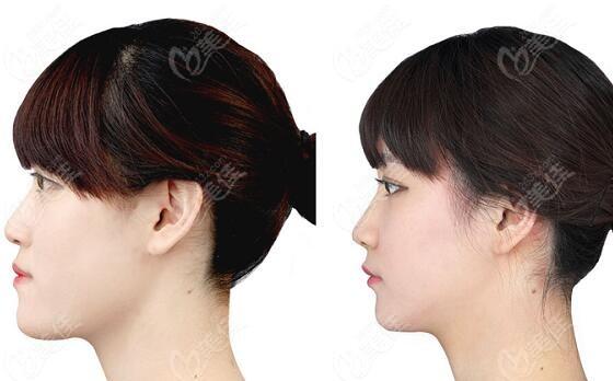 韩国原辰双颚手术真的对比照