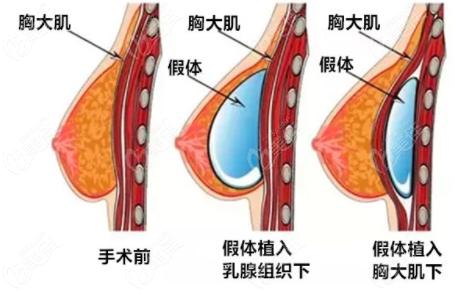 假体放置胸部位置示意图