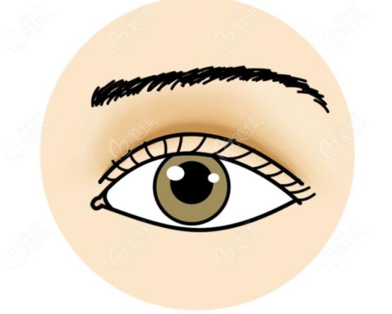 痕迹明显的网红夸张双眼皮
