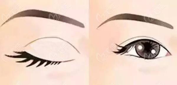 何医生常做的扇形双眼皮