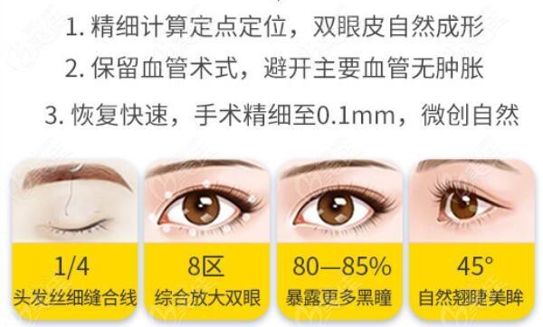 王春燕医生做双眼皮的技术