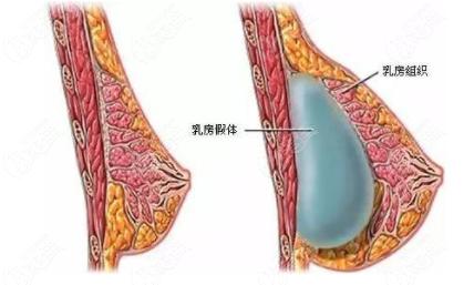 天津维美做假体隆胸手术咋样呢?