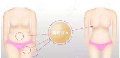 天津维美自体脂肪隆胸示意图