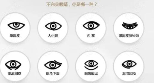 秦皇岛纪辉做双眼皮眼综合怎么样