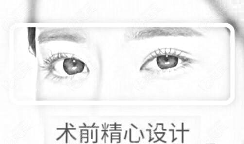 秦皇岛纪辉整形做眼综合优势