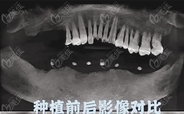 杭州康源口腔门诊部术前照片1