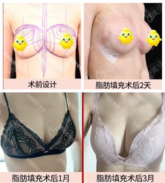 王沛森院长做的自体脂肪填充胸部前后图片