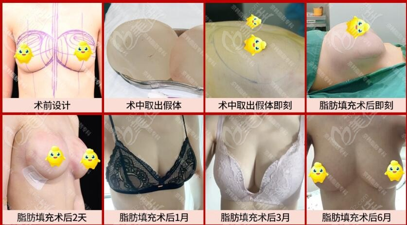 京韩王沛森院长取出隆胸假体做脂肪丰胸前后对比照片