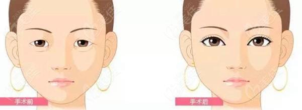 何如潭医生做双眼皮的对比图