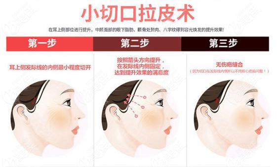 广州曙光拉皮手术价格不贵技术好