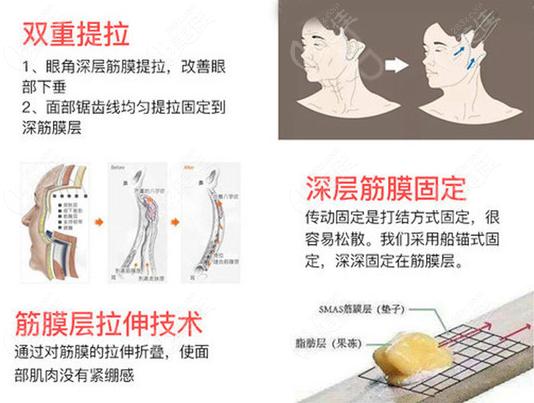 广州曙光医院拉皮手术做的蛮好的
