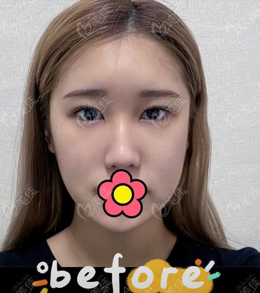 韩国优雅人整形外科做鼻子前