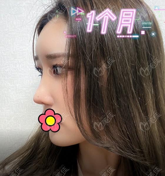 韩国优雅人整形外科做鼻子怎么样