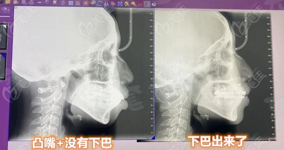芜湖壹加壹口腔术后照片1