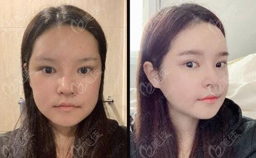 在TS整形外科做轮廓三件套+鼻修复+割双眼皮术后半个月恢复照