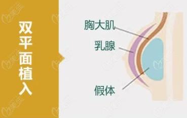 栗勇隆胸技术怎么样?他采用双平面植入技术