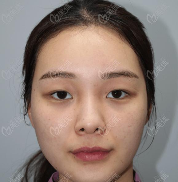 韩国现代美学整形医院金钟求术前照片1