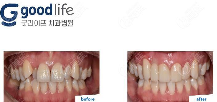 韩国goodlife口腔医院崔明硕术前照片1