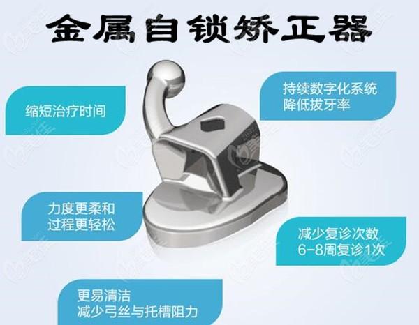 韩国固德莱芙口腔金属自锁矫正器