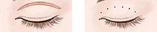 沈阳韩缘聚美割双眼皮优势