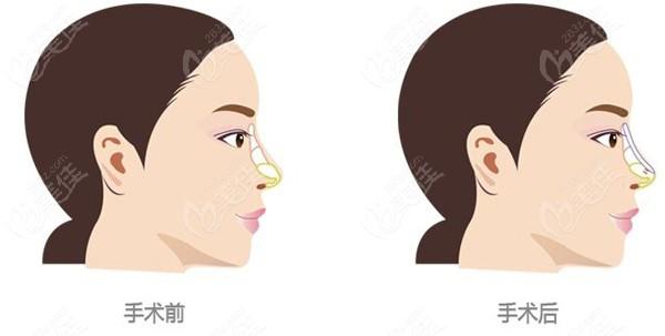 我术前的鼻子和术后鼻子的对比