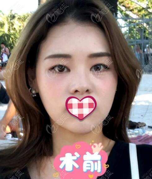 韩国优雅人整形外科朴哲佑术前照片1