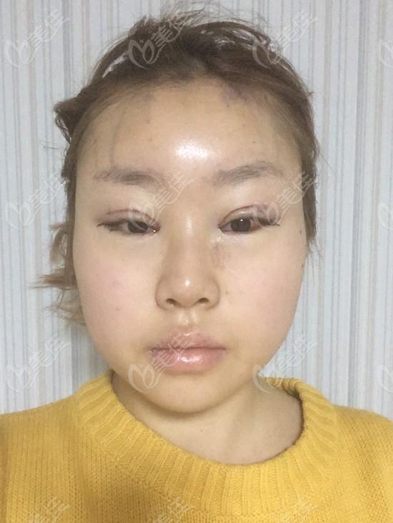 刚做完全脸脂肪填充和眼综合肿胀