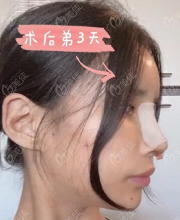 韩国肋软骨隆鼻修复术后3天照片
