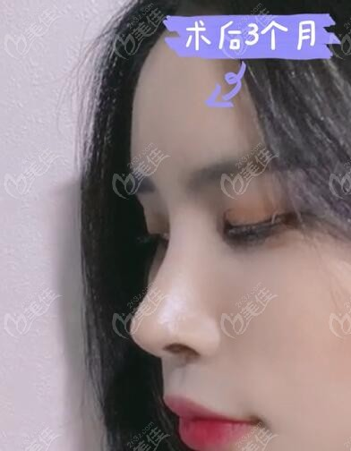 韩国迪美(THE M)整形美容医院李柱洪术后照片1