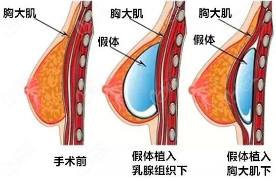 假体隆胸放置位置示意图