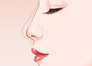 宁波艺星做鼻综合怎么样