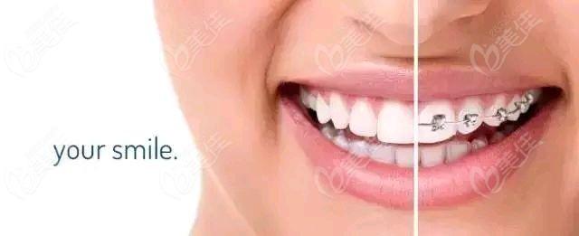 牙齿微笑曲线的重要性