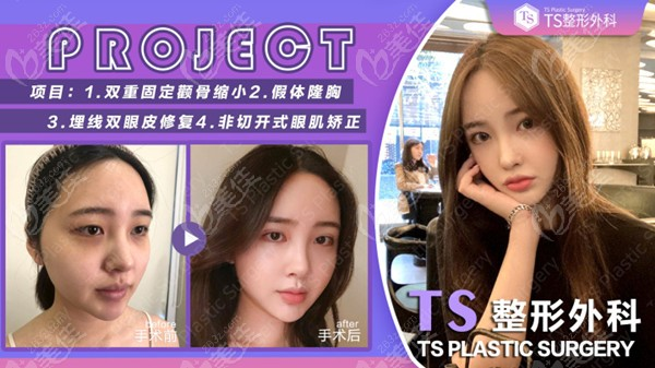 韩国TS整形做眼修复对比