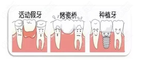 上海鼎植口腔种植牙
