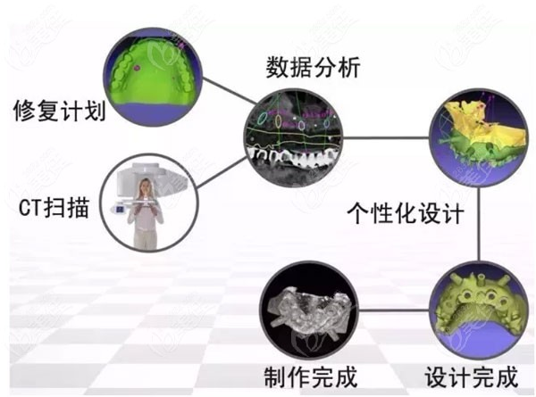 深圳美奥口腔数字化种植