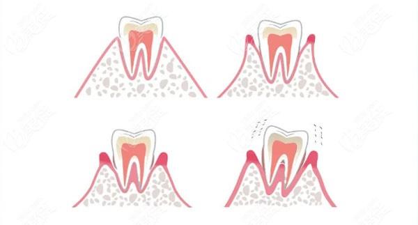 牙齿缺失导致牙齿松动