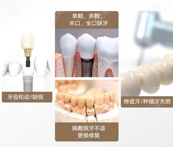 南京牙管家口腔种植牙