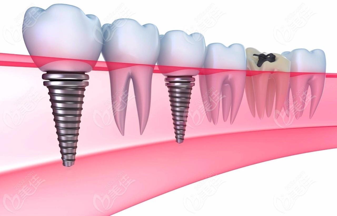 种植牙体跟邻牙间距多少蕞佳