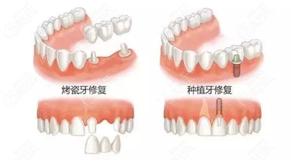 种植牙和烤瓷牙区别