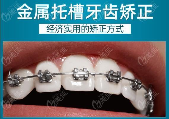金属托槽矫正牙套的收费标准