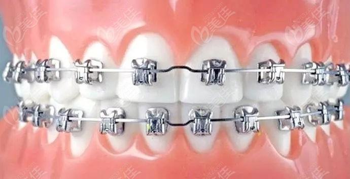 直弓丝牙齿矫正器的费用及优势