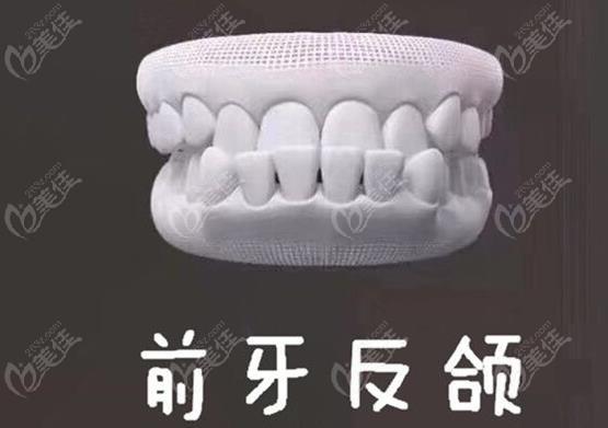 牙齿反颌矫正价格
