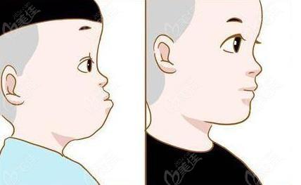 儿童5-12岁矫正反颌更合适哦