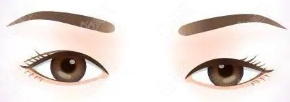 湖州曙光周虹做全切双眼皮价格要集结合眼部基础