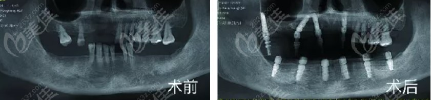满口种植牙前后照片对比