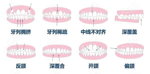 什么样的牙齿需要到郑州华瑞做矫正
