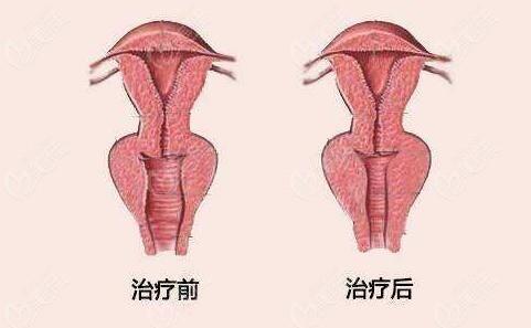 阴道松弛做阴道紧缩术前术后对比照