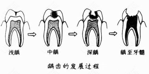 牙齿龋坏的程度及照片